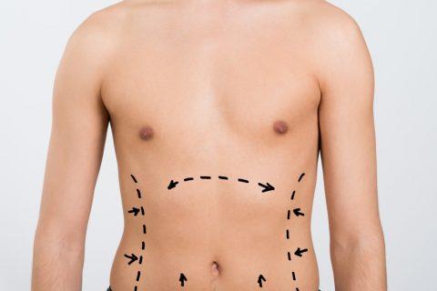 Laser Liposuction for Men